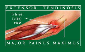 tennis elbow doctor_right